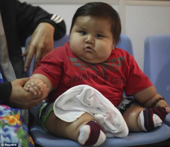 哥伦比亚8个月大男婴 已是约6岁孩子的体重