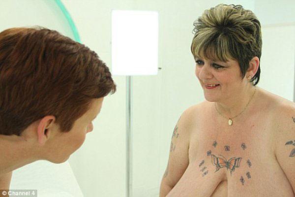 英国女士L罩杯大胸进行了缩胸手术