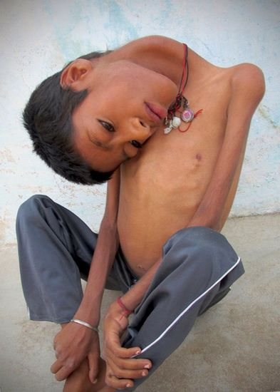 印度男童患罕见病头180度倒挂胸前 母亲不忍让其受苦希望神带走他