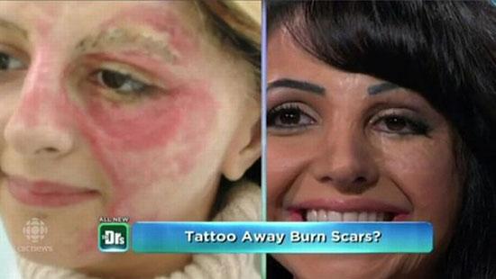 伊拉克女子成烧伤纹绣大师 帮助毁容者重拾美丽