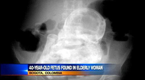 震惊!智利九旬老太腹中竟藏7个月大死胎近半世纪