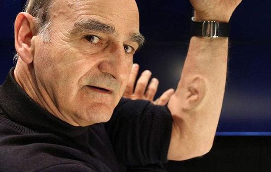 澳大利亚艺术家手臂上接种耳朵 可安装微型麦克风