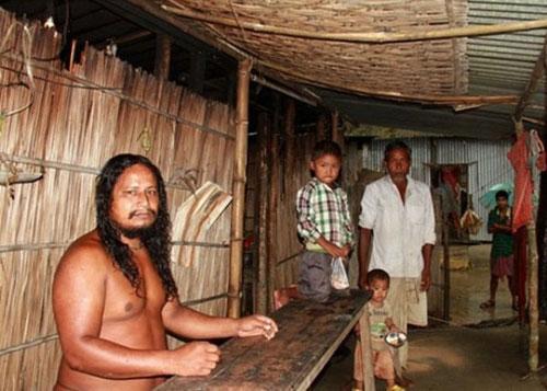 印度奇葩男子天生对衣物过敏 裸体生活40年