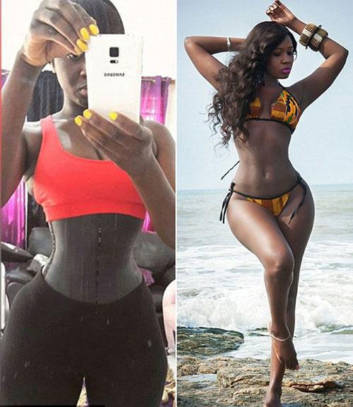非洲1尺7蛇腰女星疑因穿束腰带患上肾病