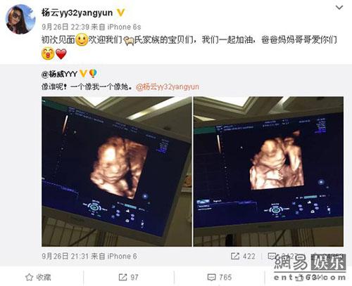 杨威夫妇二胎得双胞胎 微博晒B超照
