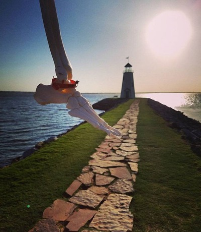 这个女孩把自己断肢做成了标本 白骨森森每天拿着乐观自拍